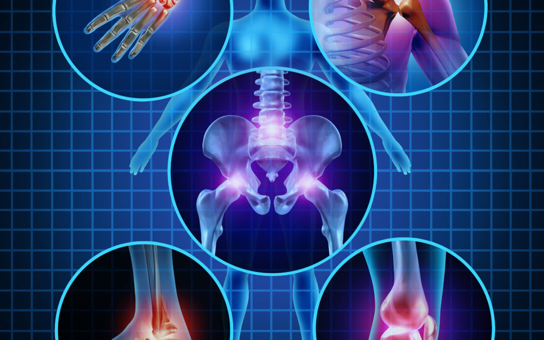 Knowing More About Joint Pain Caused by Arthritis